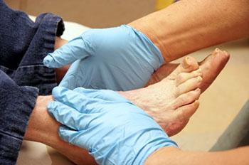 Diabetic Foot Treatment | Foot Doctor Hanover, PA 17331